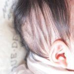 赤ちゃんの頭皮の皮むける原因 カサカサケア方法は?皮膚科に行くべき?